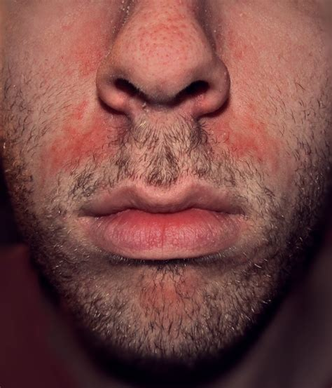 Dermatitis Seborrhoeic Causes Symptoms Treatment