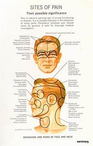 Chart Body Location 1940s What Might Be Causing Your Headache Random