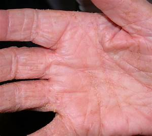 Norwegian Scabies Images