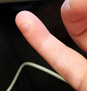 Wart Removal Goes Horribly Wrong