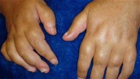 psoriatic arthritis tests  diagnosis medical news today