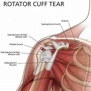 Shoulder Pain Treatment Specialists