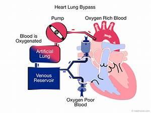 Cardiopulmonary Bypass  Heart