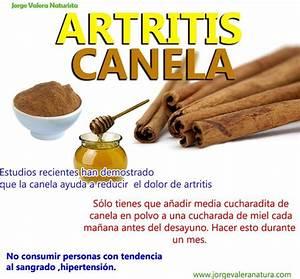 Remedio natural con canela para la artritis for Remedio para la artritis