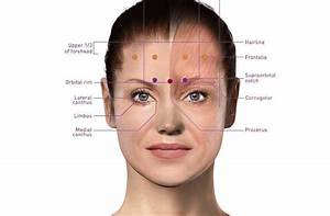 Botox Injection Sites For Migraines Diagram