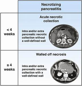 Schematic Overview Of  Peri Pancreatic Collections In