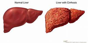 Cirrhosis. Causes, symptoms, treatment Cirrhosis