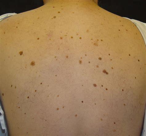Brown Skin Spots On Back