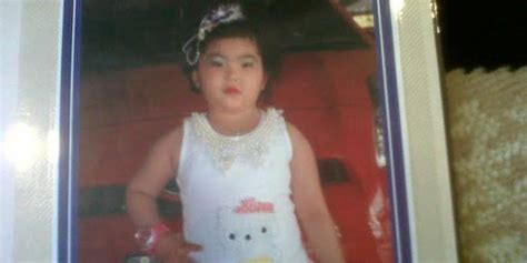 Dokter Kandungan Wanita Di Malang 5 Hari Dirawat Di Rs Hermina Palembang Bocah 6 5 Tahun