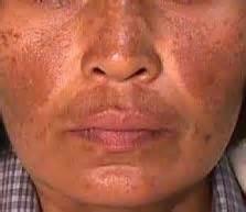 Woods L Examination Melasma by Skin Pigmentation Disorders Flashcards Quizlet