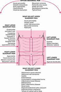 Medical  Abdominal Pain Quadrant Wise