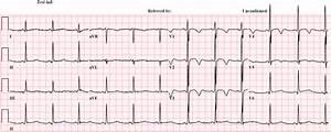 Dr  Smith U0026 39 S Ecg Blog  T