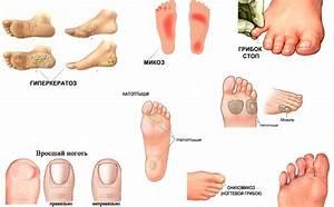 Флуконазол отзывы от грибка ногтей ног