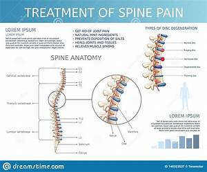 Vector Treatment Of Spine Pain  Spine Anatomy  Stock