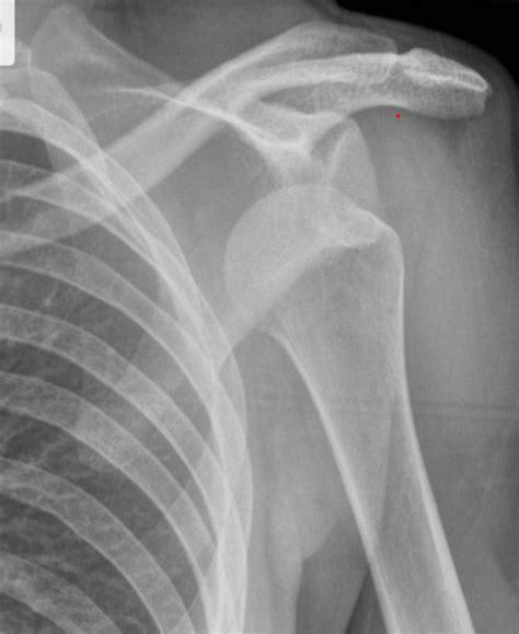 Shoulder Dislocation – The Cunningham Technique ...