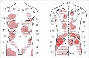 Nonradicular Pain  Spondylogenic And Myofascial Pain