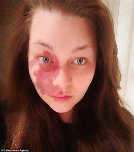 Woman Who Had Been Hiding Facial Birthmark For Years Finds