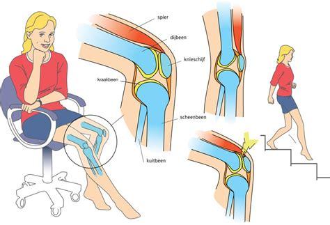 pijn achterkant knieholte