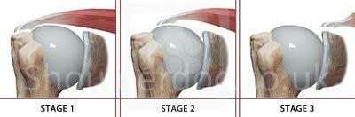 Rotator Cuff Classifications | ShoulderDoc