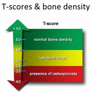 News Nhs Chart Osteoporosis Treatment The Bodyworks Clinic Marbella Spain
