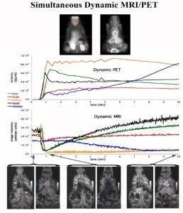 Multi-Organ Simultaneous Dynamic Gd-MRI and FDG PET in the ...