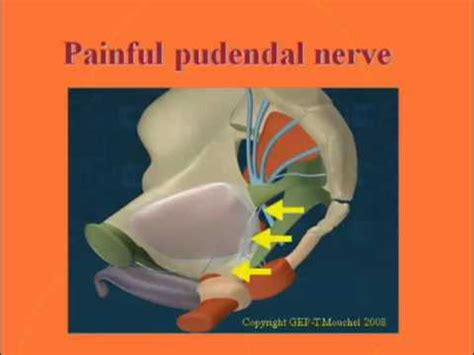 Anatomy The Pudendal Nerve Diagnosis Causes