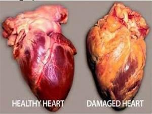 Real Unhealthy Human Heart | Coração | Pinterest | Human ...