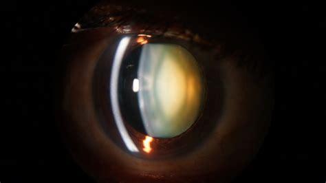 slit l eye exam slit l examination of the anterior segment of the eye