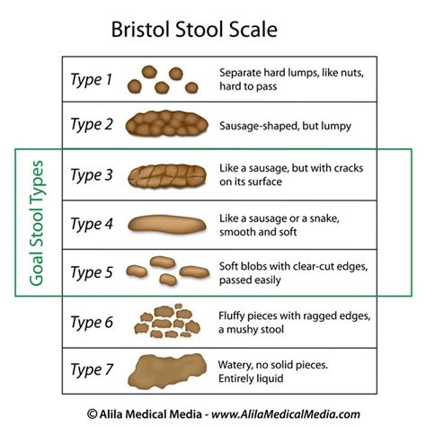 How To Harden Stool - symptoms types bowel voices for pfd