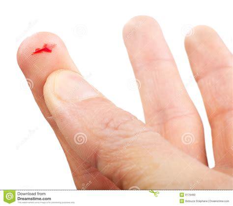 si馮e de finger flesh wound stock photo image 9179460