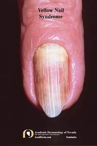yellow nail yellow nails lymphedema