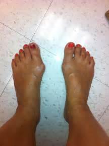 Feet Bunions Surgery