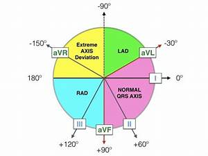 Left Axis Deviation  Lad   U2022 Litfl  U2022 Ecg Library Diagnosis