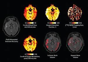 Cerebral Ischemia And Diffusion Hypoxia In Traumatic Brain
