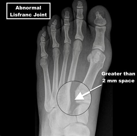 Another mechanism by which a lisfranc injury occurs is when an athlete, typically an offensive lineman in football, sustains a direct blow compression injury through their foot. Lisfranc Injury - A Matter of a Few Millimeters