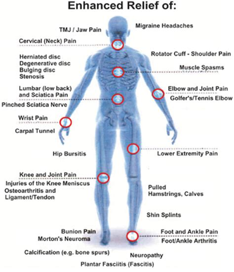 laser therapy fit  life vaughan chiropractor