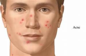 Best Acne, Pimple & Acne Scar Treatment in Surat - Gujarat ...