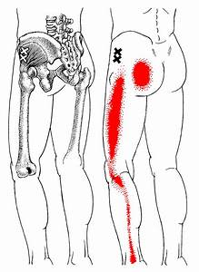 Sit Bone Pain Has More Than One Cause - Updated 2017 ...