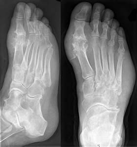 Мази для сустава на большом пальце ноги