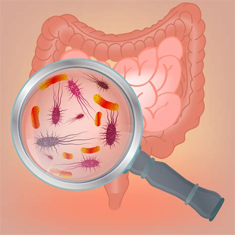 Can Probiotics Help Reduce Acid Reflux
