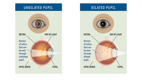 dilated eye exams   pupil dilation test  important