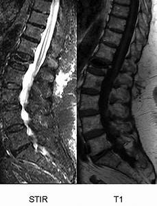 Bone Marrow Edema In Osteoporotic Vertebral Compression Fractures After Percutaneous