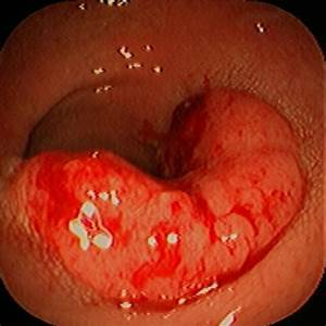 Colon Cancer Of The Sigmoid Colon