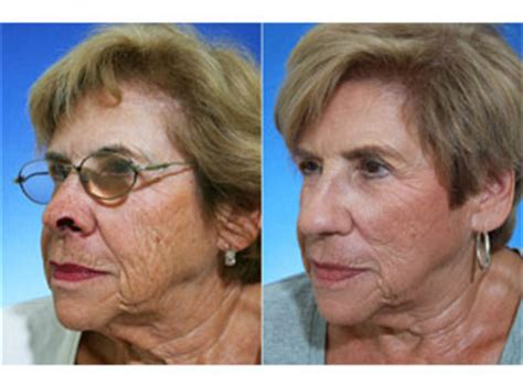 mohs surgery repair facial reconstruction skin cancer
