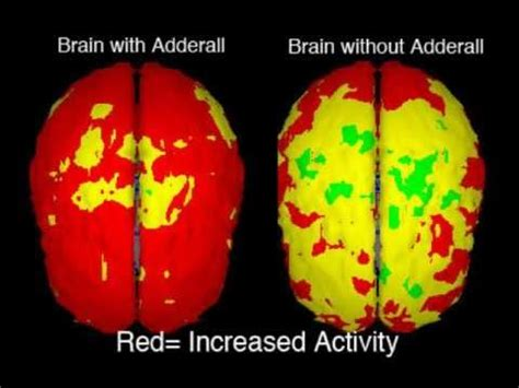 adderall side effects youtube