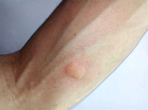 picada de mosquito dengue infectada pomada inchada coca
