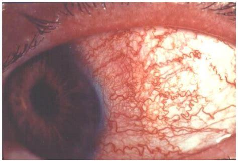 glaukoma akut panduan praktik klinis bagi dokter