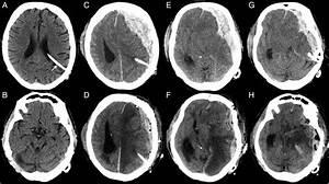 Imaging Assessment Of Traumatic Brain Injury