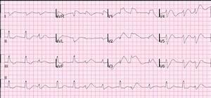 Dr  Smith U0026 39 S Ecg Blog  Cardiac Arrest  Severe Acidosis  And