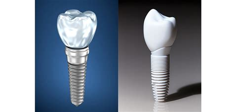 implant retained  implant supported dentures